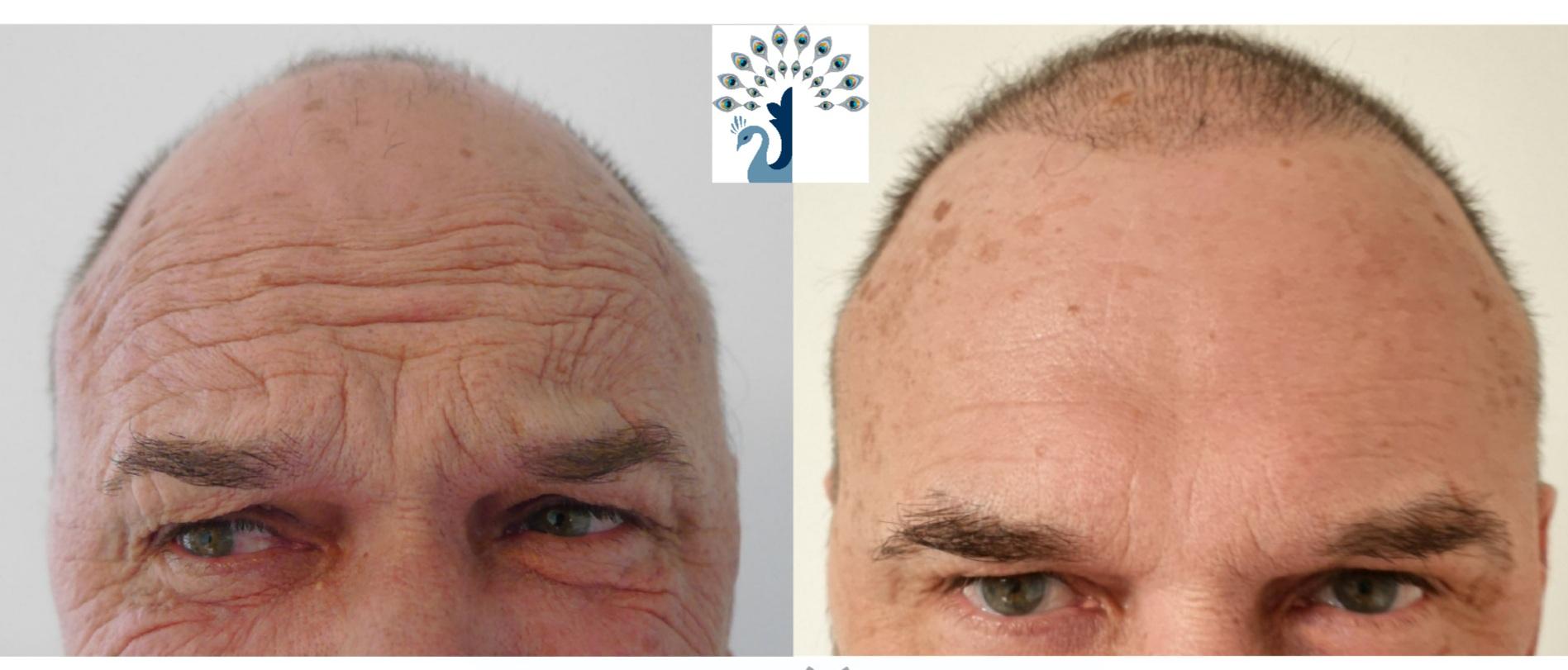 Botox avant-après