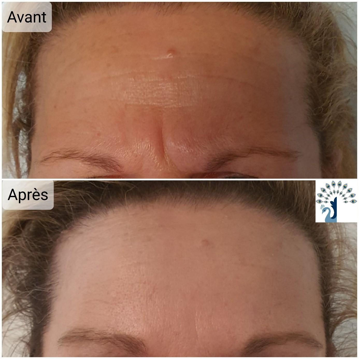 avant après botox